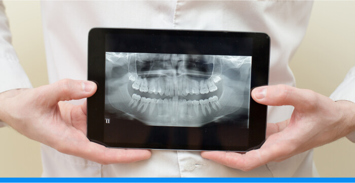 A man's hands holding a computer tablet showing a full-mouth x-ray image
