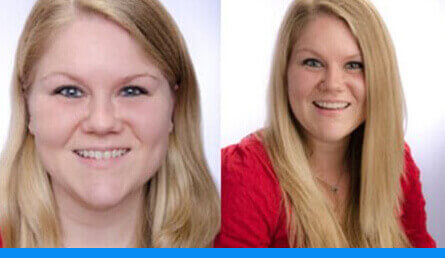 Gallery images of a woman's smile restoration